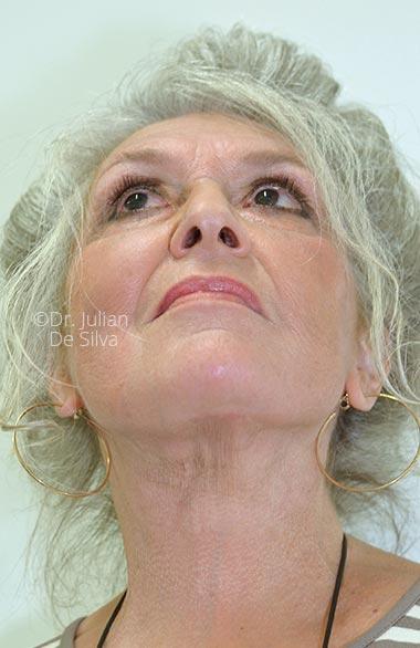 Photos 18-months after surgery: Facelift - Female face, base view, patient 1 (neck)