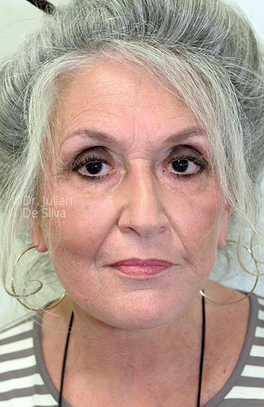 Photos at 6-weeks after surgery: Facelift (Rhytidectomy) - Female face, frontal view, patient 1