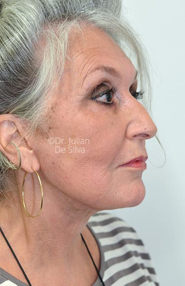 Photos at 6-weeks after surgery: Facelift (Rhytidectomy) - AfterTreatment - Female face, right side view, patient 1