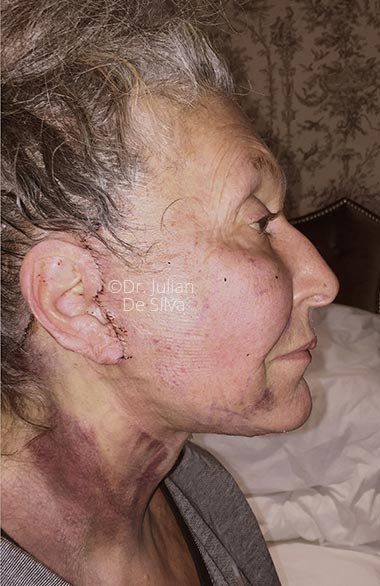 Photo: Facelift (Rhytidectomy) - AfterTreatment - Female face, right side view, patient 1