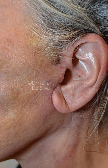 Photo: Facelift - AfterTreatment - Female face, left side view, patient 1. Photos show the scars at 1-week after surgery (ear)