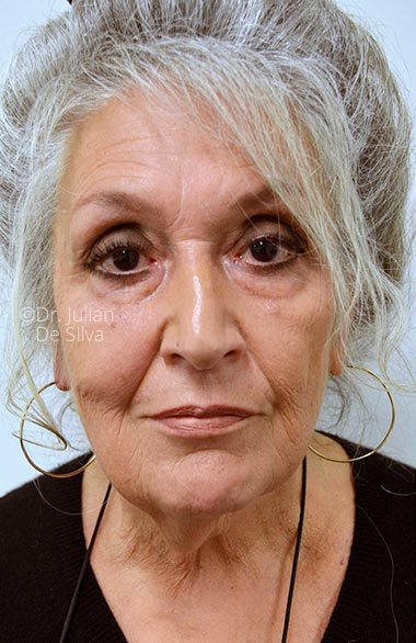 Photo: Facelift (Rhytidectomy) - Before Treatment - Female face, frontal view, patient, patient 1