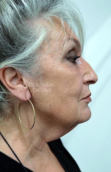 Photo: Facelift - Before Treatment - Female face, right side view, patient 1