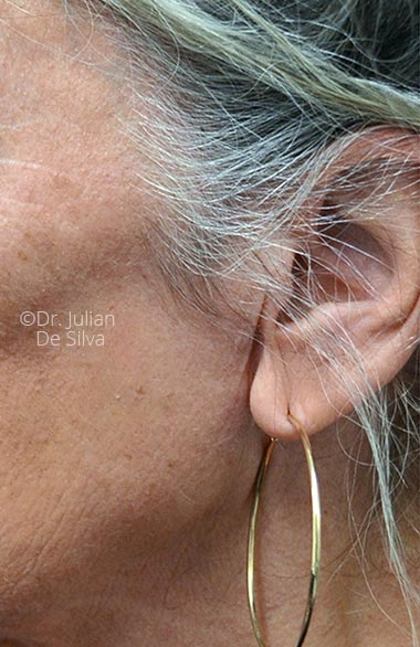 Photo: Facelift - Before Treatment - Female face,left side view, patient 1 (ear)