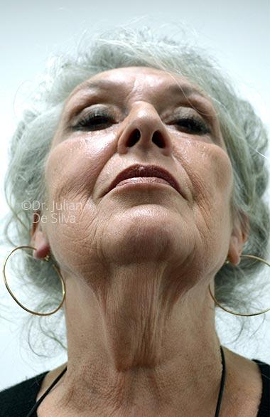 Photo: Facelift - Before Treatment - Female face, base view, patient 1 (neck)