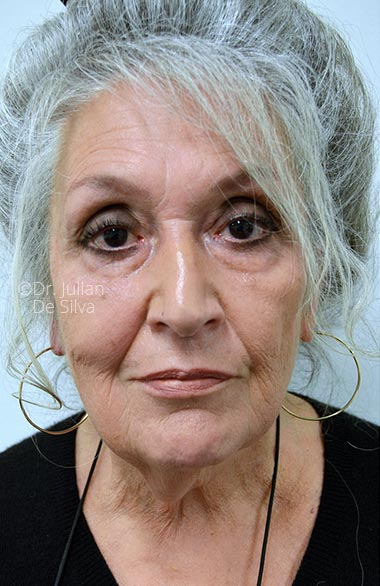 Photos: Facelift (Rhytidectomy) - Before Treatment - Female face, frontal view, patient 1.