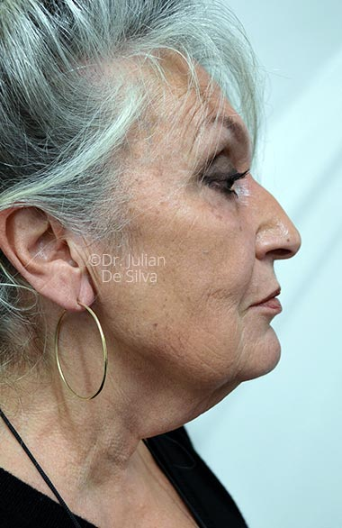 Photo: Facelift-Before Treatment - Female face, right side view, patient 1