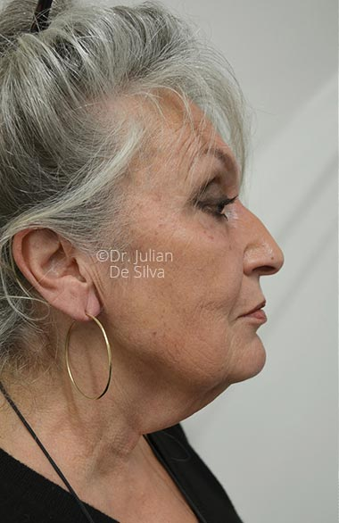 Photo: Facelift (Rhytidectomy) - Before Treatment - Female face, right side view, patient 1