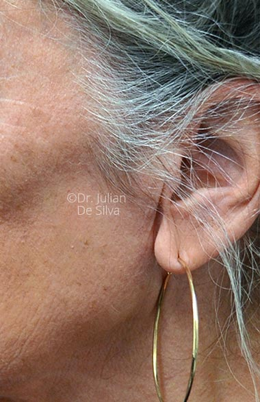 Photo: Facelift - Before Treatment - Female face, left side view, patient 1 (ear)
