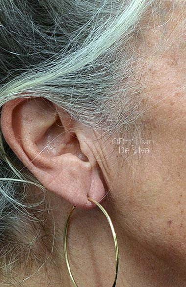 Photo: Facelift - Before Treatment - Female face,right side view, patient 1 (ear)