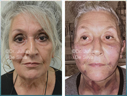 Female face, Before and 12 hours After Facelift Treatment, face lifting surgery, front view, patient 21
