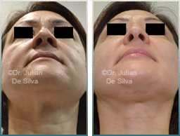 Female neck, Before and After Facelift Treatment, face and neck lifting surgery, front view, patient 22