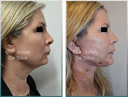 Female Neck, Before and After Facelift Treatment, neck lifting surgery, side view, patient 23