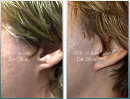 Male Neck, Before and After Facelift Treatment, neck lifting surgery, side view, patient 24