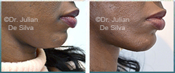 Female Neck, Before and After Facelift Treatment, neck lifting surgery, side view, patient 25