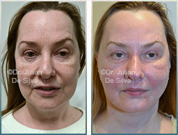 Female face, Before and 6 weeks After Facelift Treatment, face and neck lifting surgery, front view, patient 26