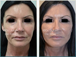 Female face, Before and 6 weeks After Facelift Treatment, face lifting surgery, front view, patient 27