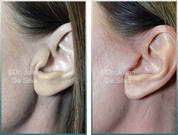Female Neck, Before and After Facelift Treatment, neck lifting surgery, side view, patient 28