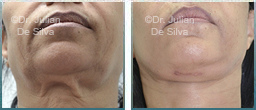 Female Neck, Before and After Facelift Treatment, neck lifting surgery, front view, patient 29