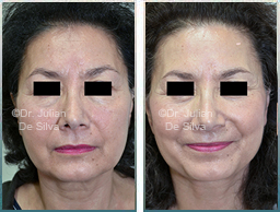 Female Neck, Before and After Facelift Treatment, face and neck lifting surgery, front view, patient 30