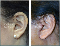 Female Neck, Before and 1 week After Facelift Treatment, neck lifting surgery, side view, patient 31