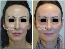 Female face, Before and After Facelift Treatment, face and neck lifting surgery, front view, patient 32
