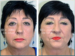 Female face, Before and After Facelift Treatment, face and neck lifting surgery, front view, patient 33