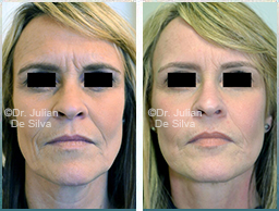 Female face, Before and After Facelift Treatment, face and neck lifting surgery, front view, patient 34