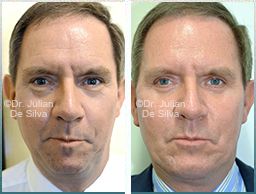 Male face, Before and After Facelift Treatment, face and neck lifting surgery, front view, patient 34