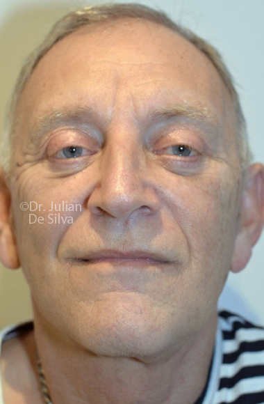 Male face, After Facelift Treatment, frontal view, patient 3, Photos show the scars at 1-week after surgery