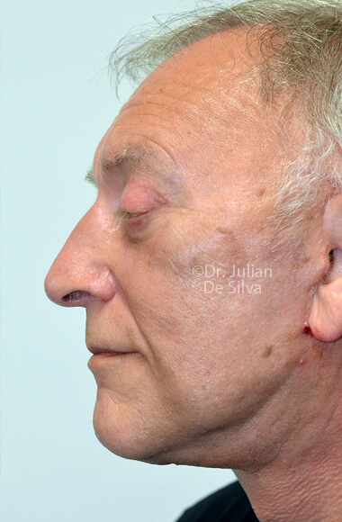 Male face - AfterFacelift Treatment, left side view, patient 3.Photos show the scars at 1-week after surgery