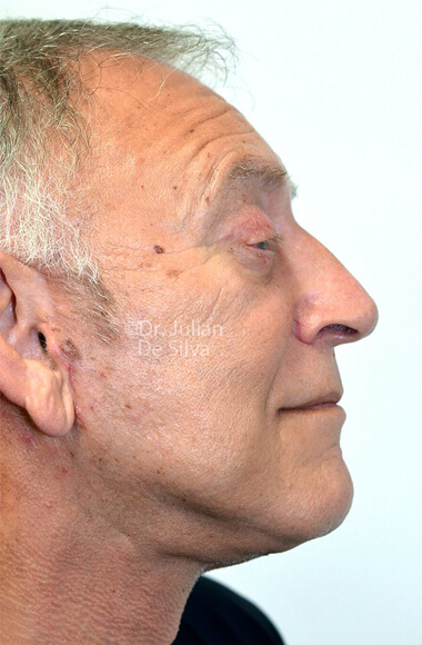 Male face - After Facelift Treatment, right side view, Photos show the scars at 1-week after surgery  patient 3.