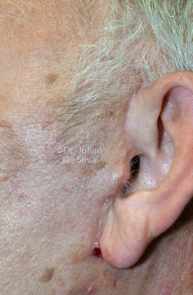 Male ear - After Facelift Treatment, left side view, patient 3, Photos show the scars at 1-week after surgery