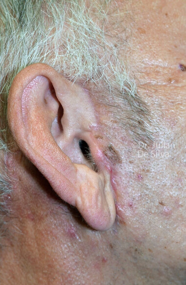 Male ear - After Facelift Treatment, right side view, patient 3, Photos show the scars at 1-week after surgery
