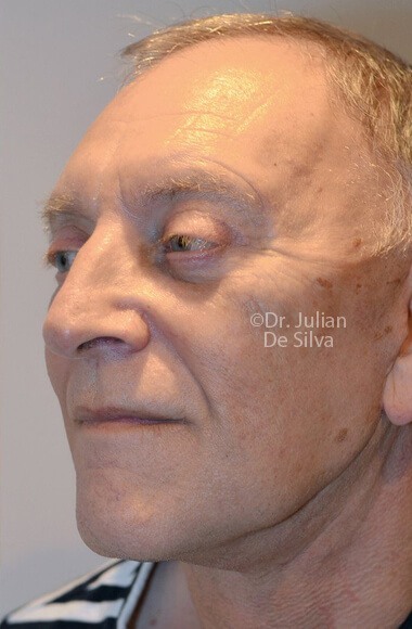 Male face, After Facelift Treatment, left side oblique view, patient 3, Photos show the scars at 1-week after surgery