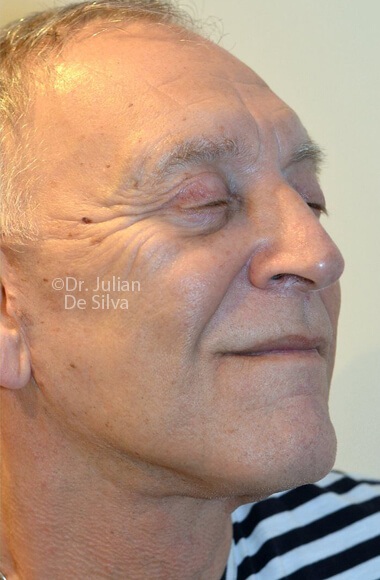 Male face, After Facelift Treatment, right side oblique view, patient 3, Photos show the scars at 1-week after surgery