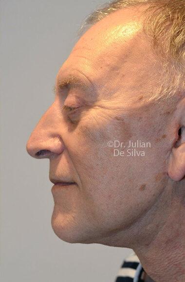 Male face, AfterFacelift Treatment, left side view, patient 3.Photos show the scars at 1-week after surgery