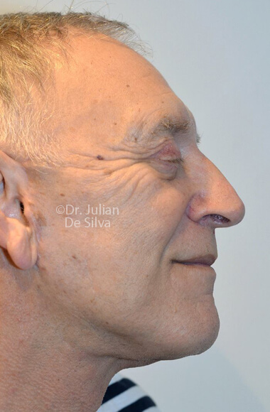 Male face, After Facelift Treatment, right side view, Photos show the scars at 1-week after surgery  patient 3.