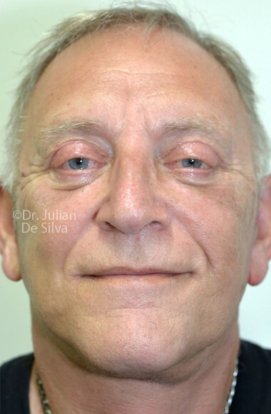 Male face, After Facelift Treatment, frontal view - patient 3, Photos show the scars at 1-week after surgery