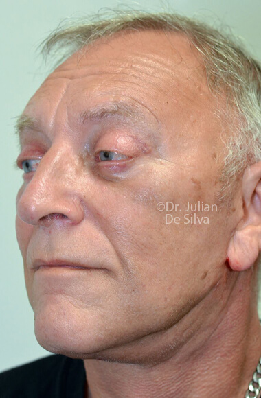 Male face - After Facelift Treatment, left side oblique view, patient 3, Photos show the scars at 1-week after surgery
