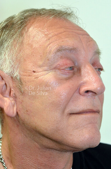 Male face - After Facelift Treatment, right side oblique view, patient 3, Photos show the scars at 1-week after surgery