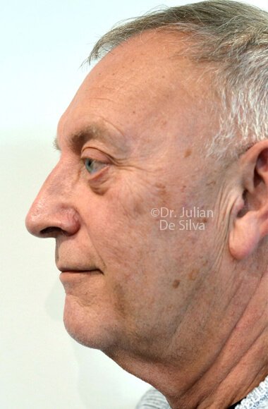 Male face - Before Facelift Treatment, left side view, patient 3