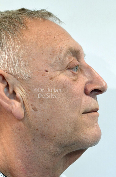 Male face - Before Facelift Treatment, right side view, patient 3