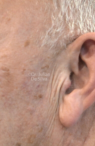 Male ear - Before Facelift Treatment, left side view, patient 3