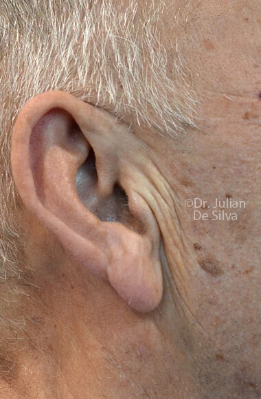 Male ear - Before Facelift Treatment, right side view, patient 3