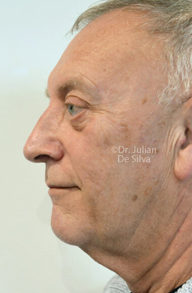 Male face, Before Facelift Treatment, left side view, patient 3