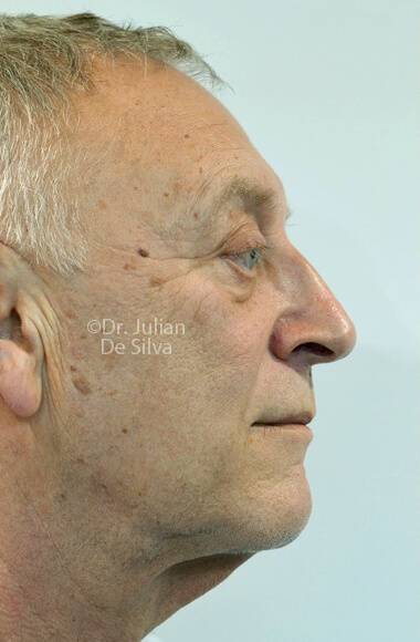 Male face, Before Facelift Treatment, right side view, patient 3