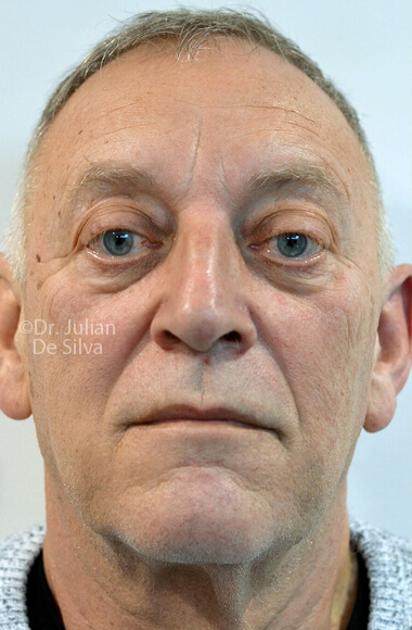 Male face, Before Facelift Treatment, frontal view - patient 3
