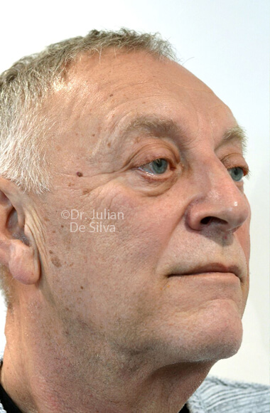 Male face - Before Facelift Treatment, right side oblique view, patient 3
