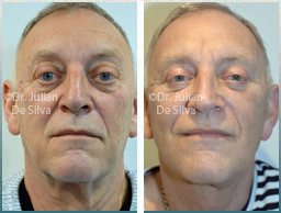 Male face, Before and After Facelift Treatment, face and neck lifting surgery, front view, patient 36
